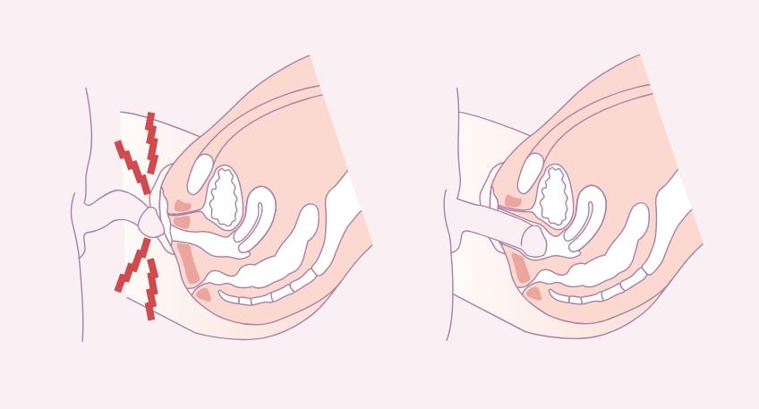 schema-penetration-vaginisme