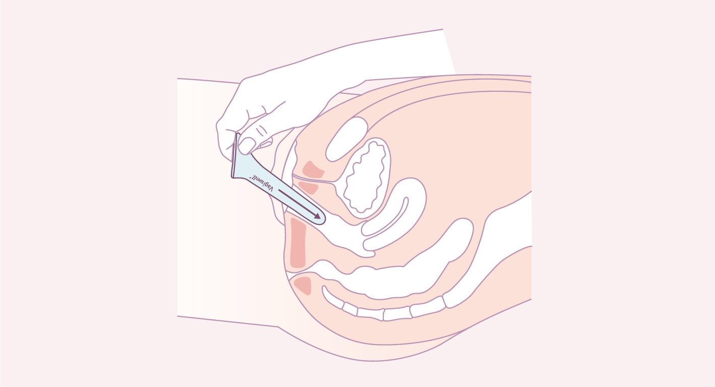 Insertion dilatateur vaginal